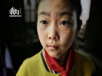 农村90%近视儿童不戴眼镜